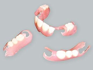 入れ歯の治療